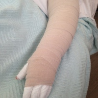 Bandaging for Lymphedema - Why do we do it?