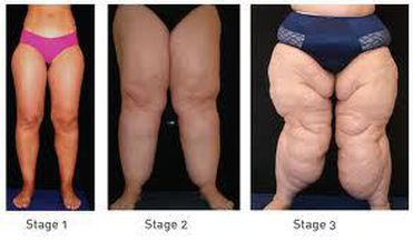 Lipedema - an under or misdiagnosed medical condition